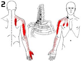 Muskulære Brystsmerter